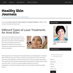 Different Types of Laser Treatments for Acne Scars