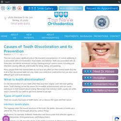 Causes of Tooth Discoloration and Its Prevention