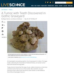 A Tumor with Teeth Discovered in Gothic Graveyard