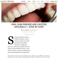 Heal Gum Disease and Cavities Naturally – Step by Step