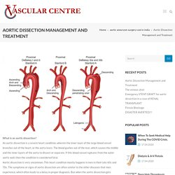 Aortic Dissection Management and Treatment - Vascular Centre