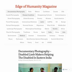 Documentary Photography – Disabled Limb Makers Helping The Disabled In Eastern India