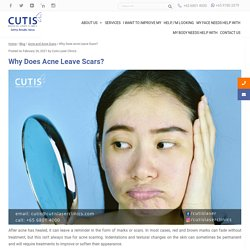 Why Does Acne Leave Scars? What can help improve acne scars?