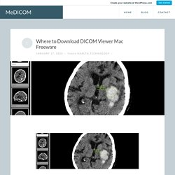 Where to Download DICOM Viewer Mac Freeware – MeDICOM