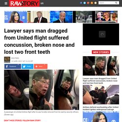 Lawyer says man dragged from United flight suffered concussion, broken nose and lost two front teeth