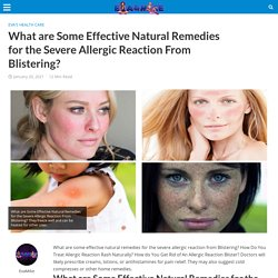 What are Some Effective Natural Remedies for the Severe Allergic Reaction From Blistering?
