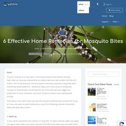 6 Effective Home Remedies for Mosquito Bites