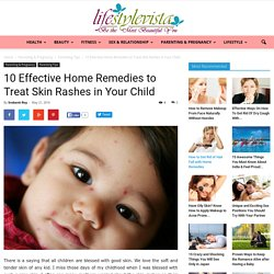 Effective Home Remedies to Treat Skin Rashes in Your Child