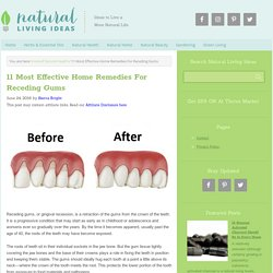 11 Most Effective Home Remedies For Receding Gums