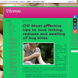 09 Most effective tips to cure itching, redness and swelling of bug bites.