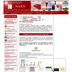 Electrophorèse SDS PAGE : principe et exemple d'application en STL Biotechnologies
