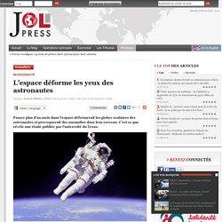 L'espace déforme les yeux des astronautes