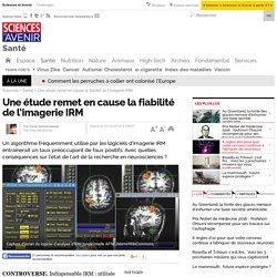 Une étude remet en cause la fiabilité de l'imagerie IRM