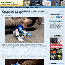 Two-year-old Everton fan Kobi receives 3D printed arm emblazoned with team logo