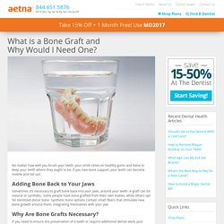Everything You Need To Know About Bone Grafts