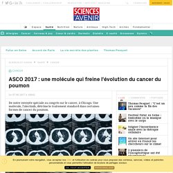 ASCO 2017 : une molécule qui freine l'évolution du cancer du poumon - Sciencesetavenir.fr