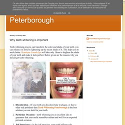 Eyelash Extensions Peterborough: Why teeth whitening is important