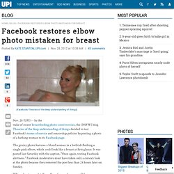 Facebook restores elbow photo mistaken for breast