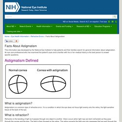 Facts About Astigmatism