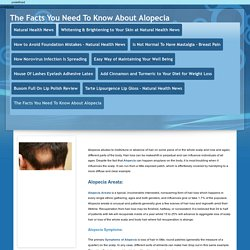 The Facts You Need To Know About Alopecia