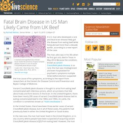 Fatal Brain Disease in US Man Likely Came from UK Beef