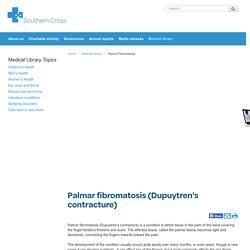 Palmar fibromatosis (Dupuytren's contracture) - Southern Cross NZ