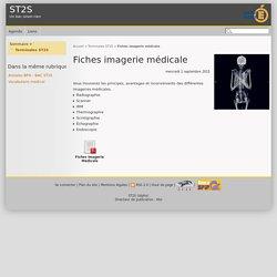 Fiches imagerie médicale - ST2S
