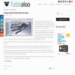 Fingers Restored By 3D Scanning - Fabbaloo Blog - Fabbaloo