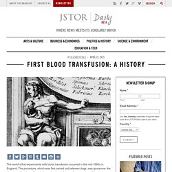 First Blood Transfusion: A History