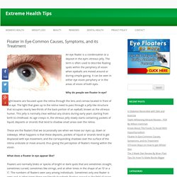 Floater In Eye-Common Causes, Symptoms, and its Treatment