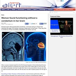 Woman found functioning without a cerebellum in her brain