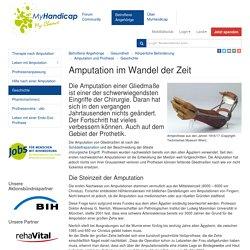 L'histoire de l'amputation: MyHandicap
