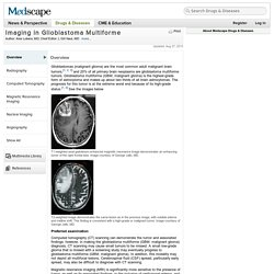 Imaging in Glioblastoma Multiforme