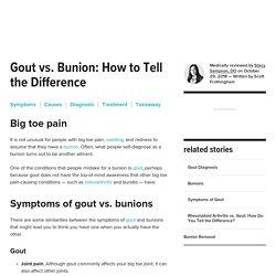 Gout vs. Bunion