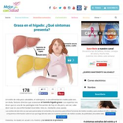 Grasa en el hígado: ¿Qué síntomas presenta? - Mejor con Salud