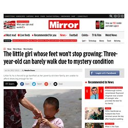 Girl, 3, feet won't stop growing due to mystery condition
