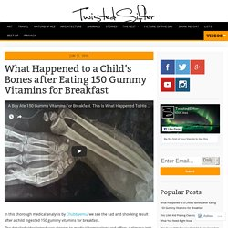 What Happened to a Child's Bones after Eating 150 Gummy Vitamins for Breakfast