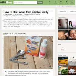How to Heal Acne Fast and Naturally: 20 Steps