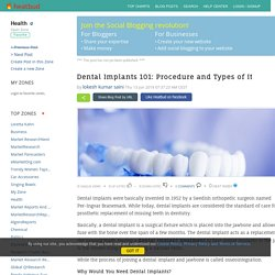Health - Dental Implants 101: Procedure and Types of It