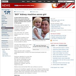 'DIY' kidney machine saves girl