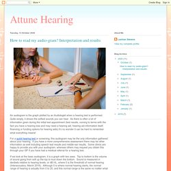 Attune Hearing: How to read my audio-gram? Interpretation and results