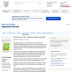 Hernia truss: Can it help an inguinal hernia?
