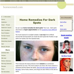 Home Remedies for Dark Spots, Freckles And Age Spot