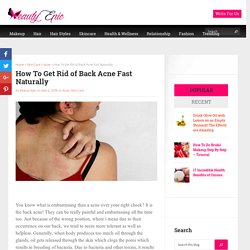 How To Get Rid of Back Acne Fast Naturally