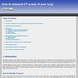 How to interpret CT scans of your lung