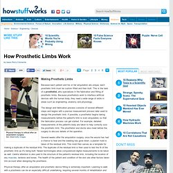 "HowStuffWorks ""Making Prosthetic Limbs"""