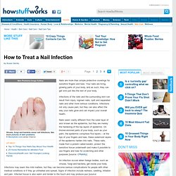 How to Treat a Nail Infection""