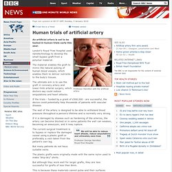 Human trials of artificial artery