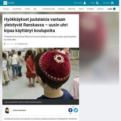 Hyökkäykset juutalaisia vastaan yleistyvät Ranskassa – uusin uhri kipaa käyttänyt koulupoika