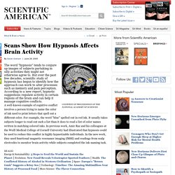 Scans Show How Hypnosis Affects Brain Activity